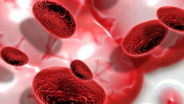 dżuma a hemochromatoza