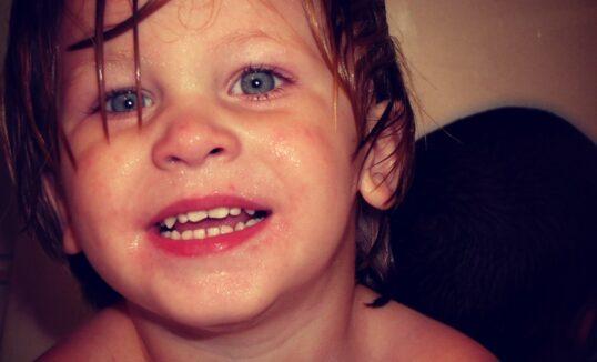 wada serca u dziecka