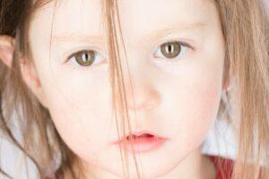 epilepsja u dzieci objawy